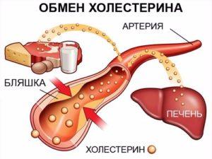 Калькулезный холецистит биохимический анализ крови