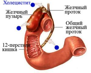 Что такое стеатоз печени и поджелудочной