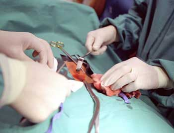 operativnoe-lechenie