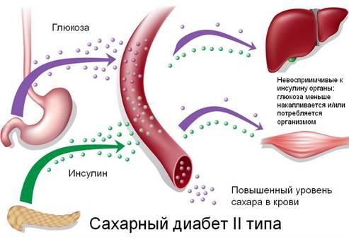 Диабет и стоматит лечение