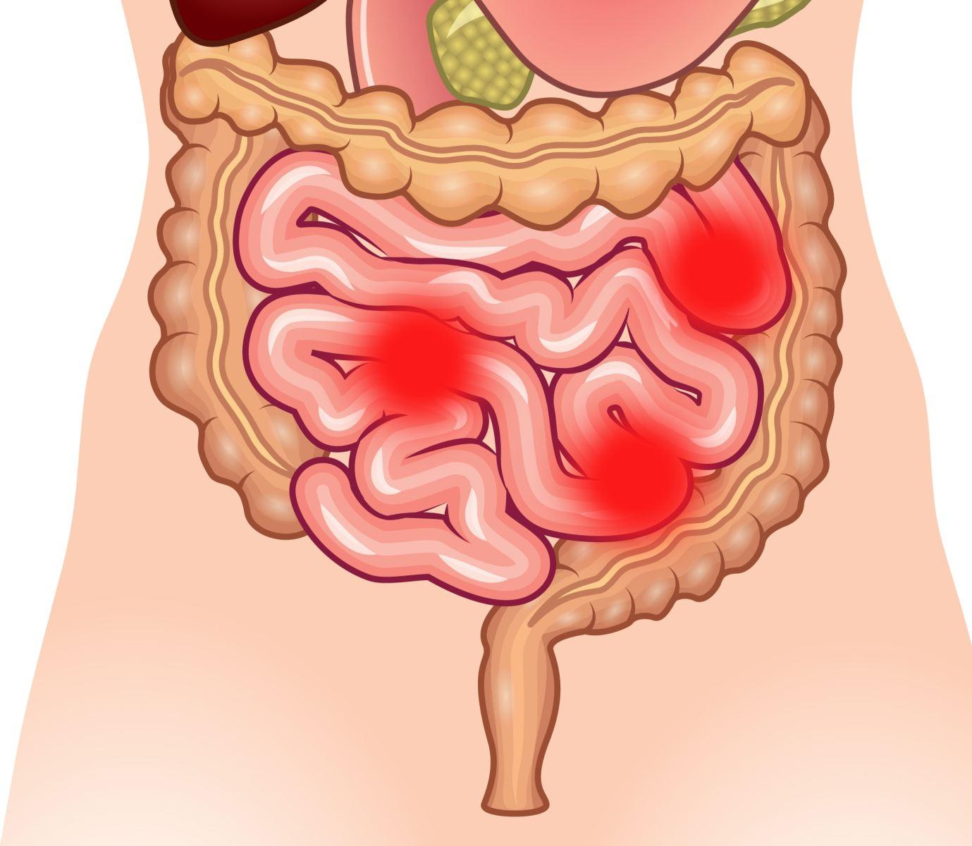 Опухоли тонкой кишки доброкачественные и злокачественные Опухолевые образования