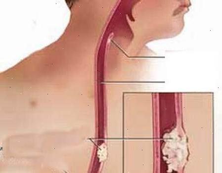 Плоскоклеточная папиллома пищевода: симптомы, виды и лечение