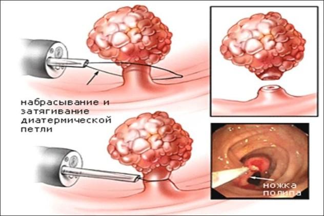 паразиты человеке лечение лекарства