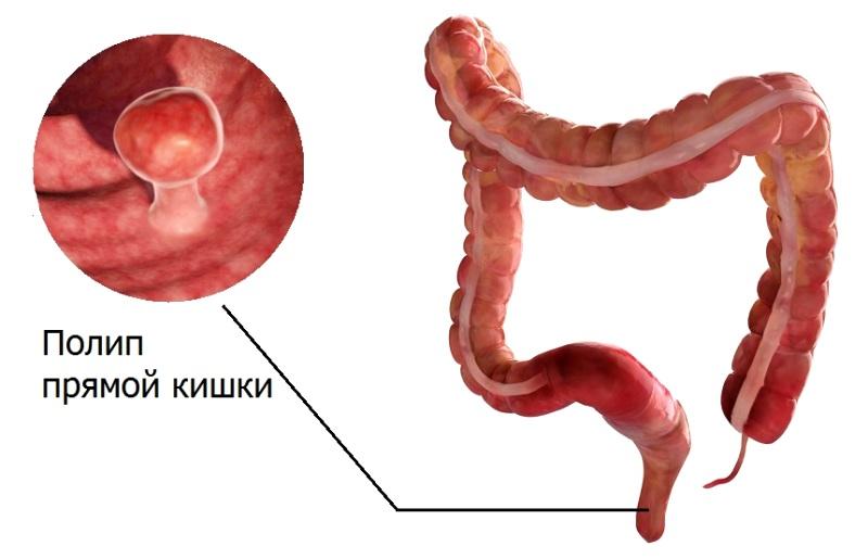 Рак прямой кишки  симптомы признаки лечение