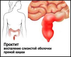Что делать при расстройстве желудка причины симптомы и