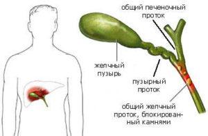 Ликвидировать повреждения внепеченочных желчных протоков можно