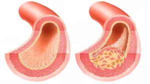 Варикозное расширение вен пищевода 3 степени