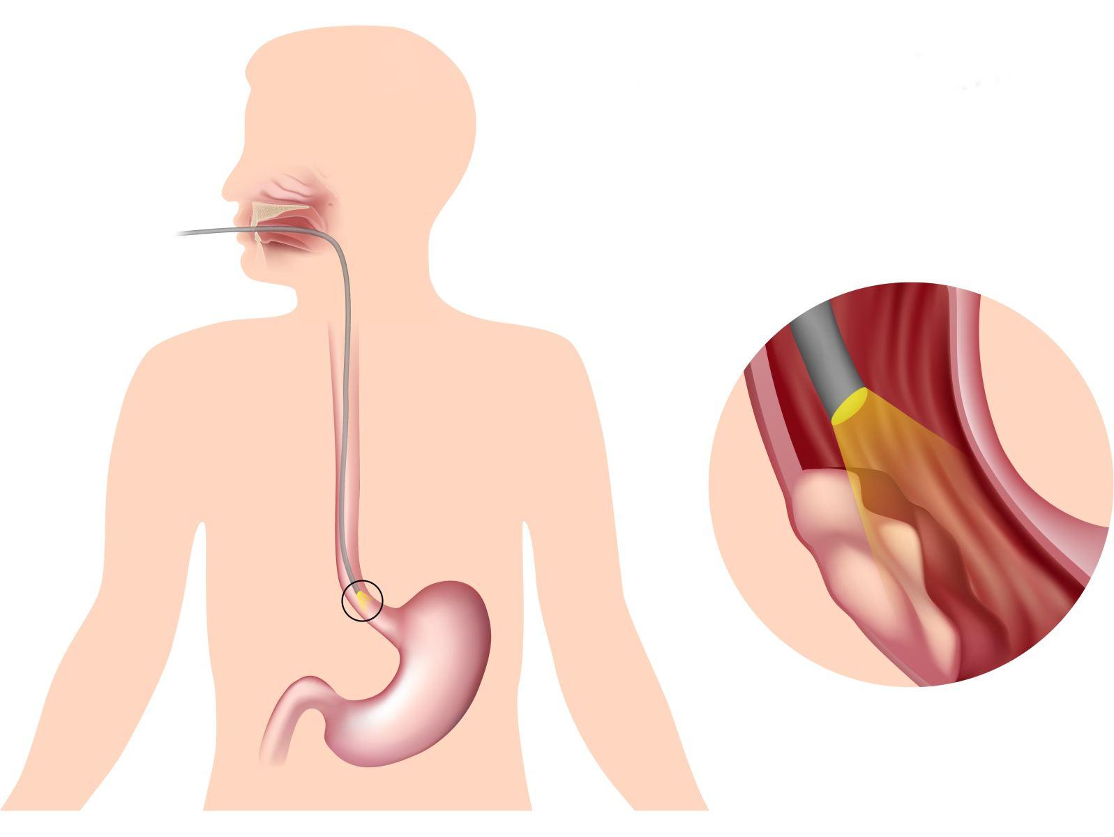 Как вылечить пищевод вылечила пищевод Лечение болезней 74