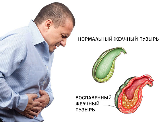 лечение паразитов печени народными средствами