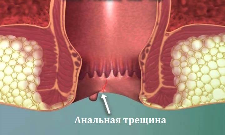 Тромбоз геморроидального узла пройдет сам