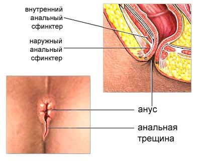 kak-snyat-spazm-vnutrennego-analnogo-sfinktera