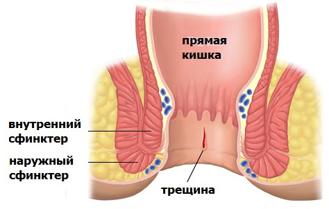 Как быстро снять боль при геморрое беременной