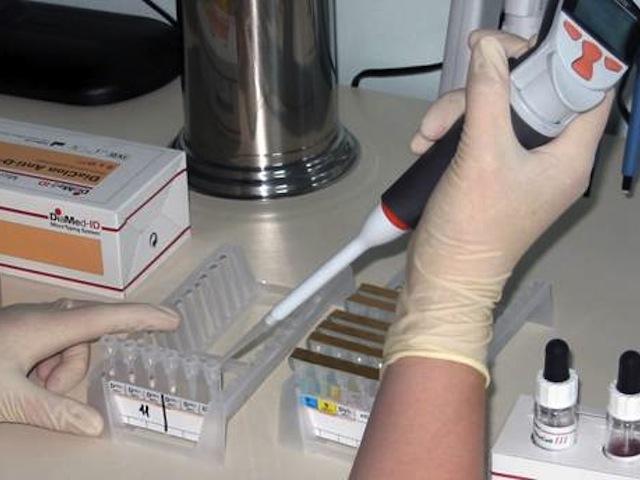 Анализ на ротавирусную инфекцию: диагностика, как определить и сдавать кал