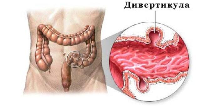 Дивертикулярная болезнь сигмовидной кишки