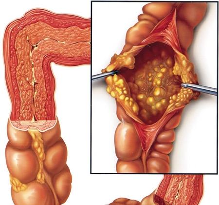 от паразитов в кишечнике