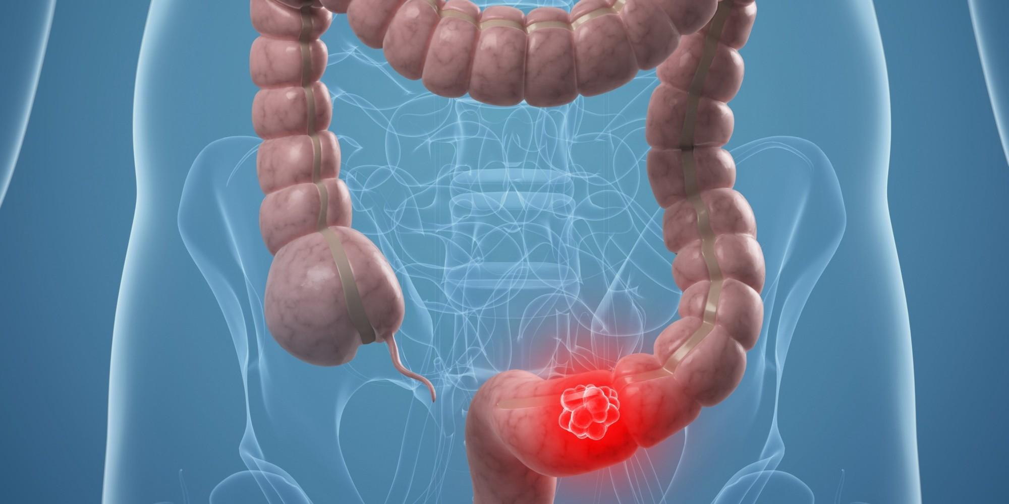 Чем и как лечить кишечник в домашних условиях