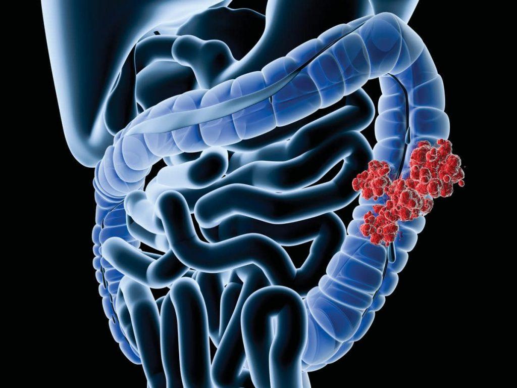 полипы в сигмовидной кишке лечение