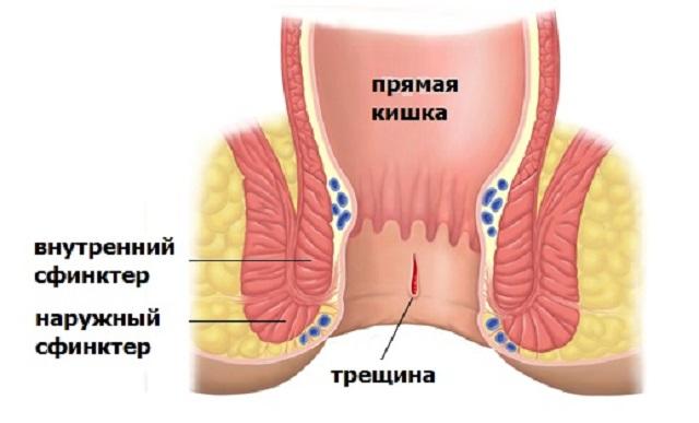 Свечи для лечения анальной трещины плюсы и минусы