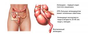 Причины возникновения аппендицита у взрослых