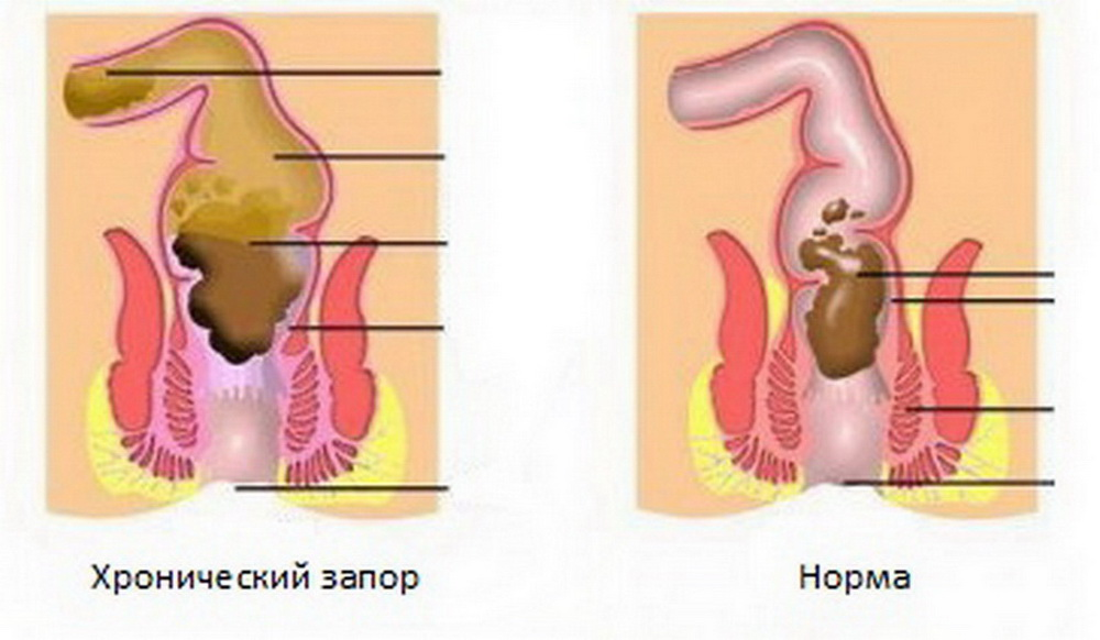 Неврастения  симптомы лечение причины у взрослых и детей
